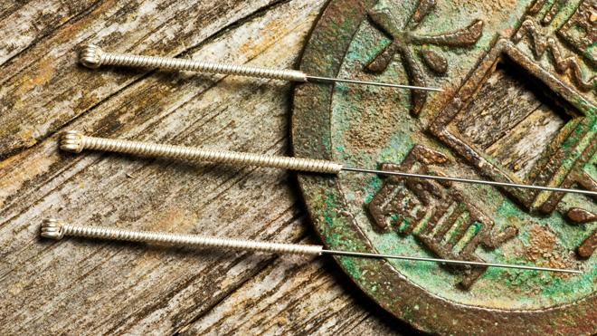 Markus Stein: Akupunktur